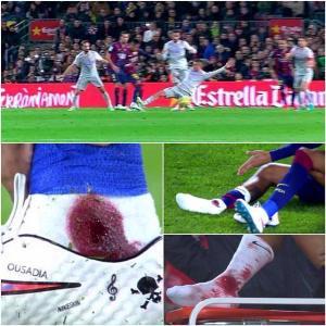 neymar cedera berdarah kakinya