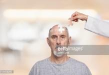 alzheimer mekanisme