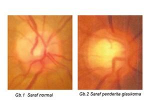 Glaukoma ada 2 jenis, yaitu glaukoma primer & glaukoma sekunder