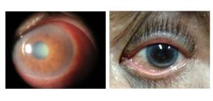 Glaukoma primer: diturunkan (ada riwayat keluarga), mengenai 2 bola mata (bilateral), bersifat kronis, sering tidak disadari