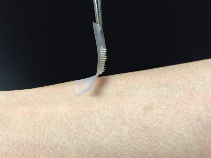 Kontrol Penyakit Diabetes dengan Jarum Mikro Lebih Efektif