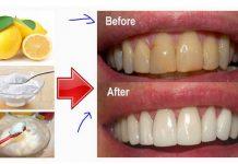 Cara memutihkan Gigi cepat secara alami Tanpa Biaya Dokter