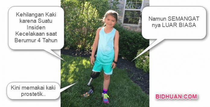 Foto Katie Kadington setelah cedera amputasi kaki