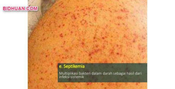 Septikemia, Multiplikasi Bakteri dalam Darah