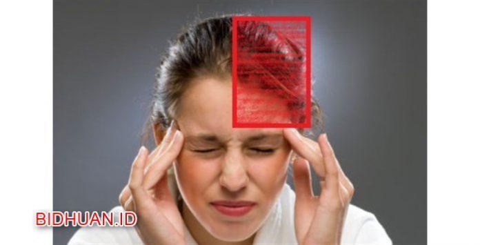 15 Obat Migrain Paling Ampuh Jenis Generik dan Herbal yang Mudah Didapat