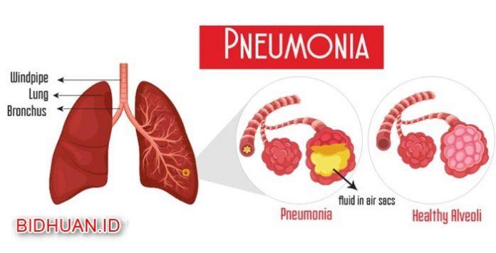 Paru Paru Basah (Pneumonia) - Penyebab Gejala dan Cara Pencegahan