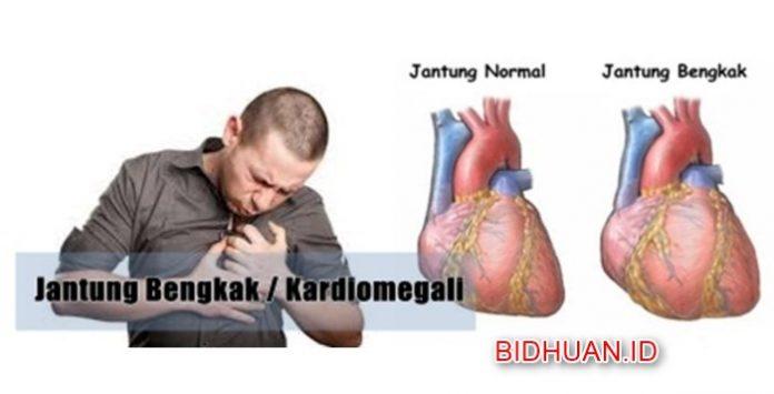 Pembengkakan Jantung - Penyebab Gejala Ciri Jantung Bengkak Pencegahan dan Terapi Penyembuhan
