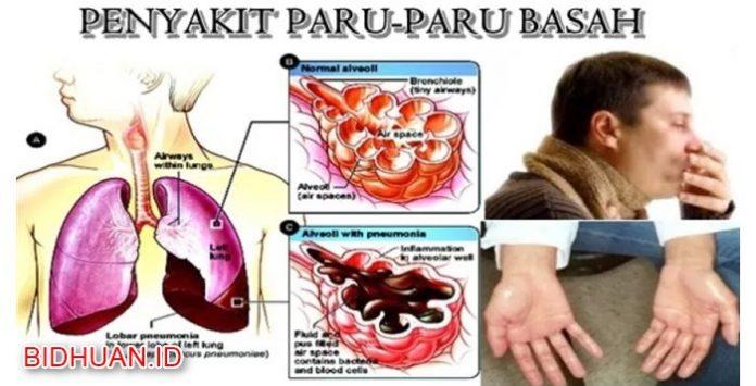 Penyakit Paru-paru Basah - Pengertian Cara Mencegah dan Metode Penyembuhan