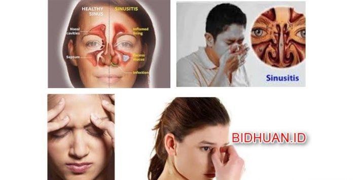 Penyakit Sinusitis - Gejala Penyebab Akibat Bahaya dan Pengobatannya