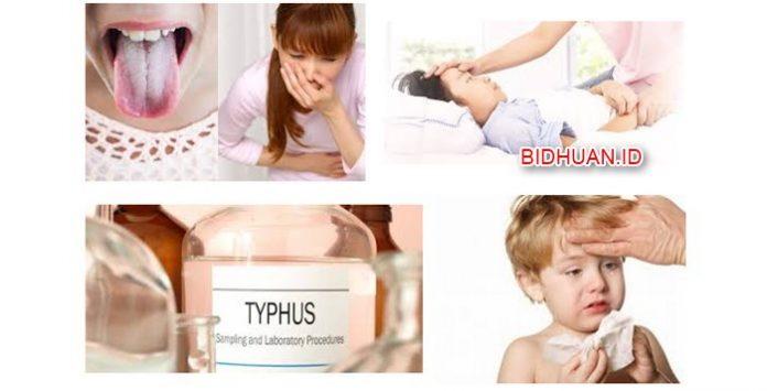 18 Gejala Tifus Pada Anak-anak dan Orang Dewasa Beserta Penyebab