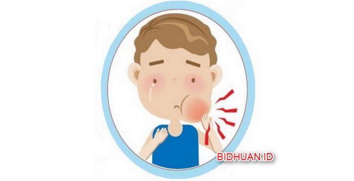 Penyakit Gondongan - Gejala Ciri Penyebab Cara Mengobati dan Mencegah