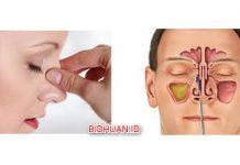 Polip Hidung - Penyebab Gejala dan Pilihan Obat Tradisional Selain Operasi