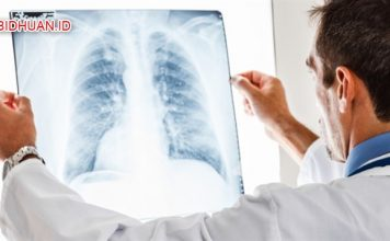 Gejala Paru-Paru Basah (Pneumonia) - 20 Gejala Umum Dari Penyakit Paru-Paru Basah Lengkap