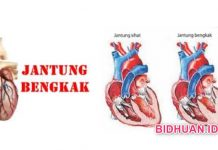 Pembengkakan Jantung - 6 Ciri dan 5 Penyebab Tandanya Serta 5 Resiko Jantung Bengkak