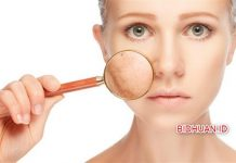 3 Cara Menghilangkan Flek Hitam Di Wajah Yang Membandel