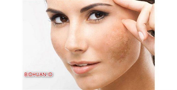 4 Cara Menghilangkan Flek Hitam Di Wajah Secara Cepat