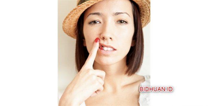 4 Obat Sakit Gigi Berlubang Dan Cenat - Cenut Paling Ampuh dan Cepat Mengobati Sakit Gigi