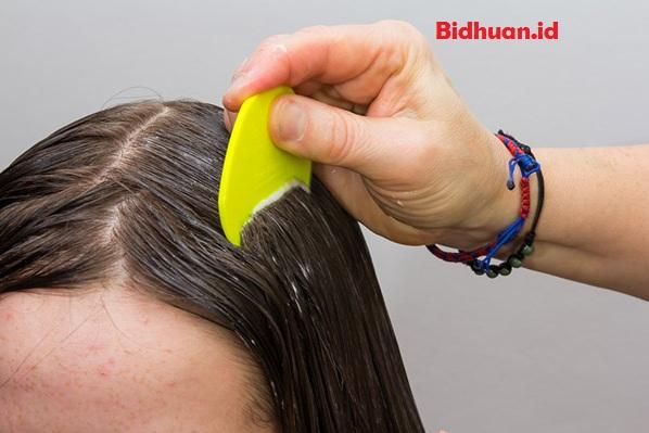 Cara Menghilangkan Kutu Rambut Dengan Lemon