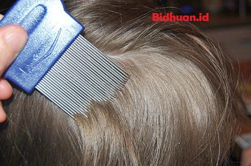 Cara Menghilangkan Kutu Rambut Dengan Sisir Serit