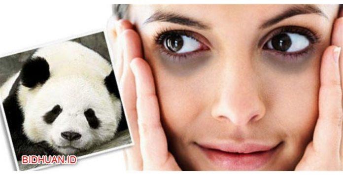 Mata Panda Hilang Seketika dengan 5 Cara Menghilangkan yang Jitu