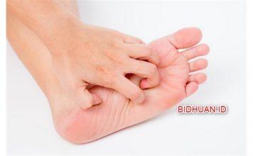 Telapak kaki sakit - Berbagai Kondisi dan Penyebab dan Pemicu Sakit di Telapak Kaki