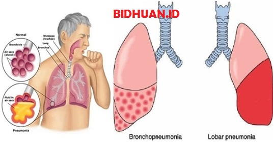 Bronkopneumonia: Gejala, Penyebab dan Pengobatannya