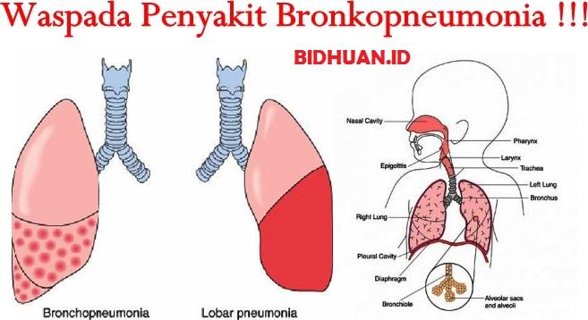 PenyebabBronkopneumonia