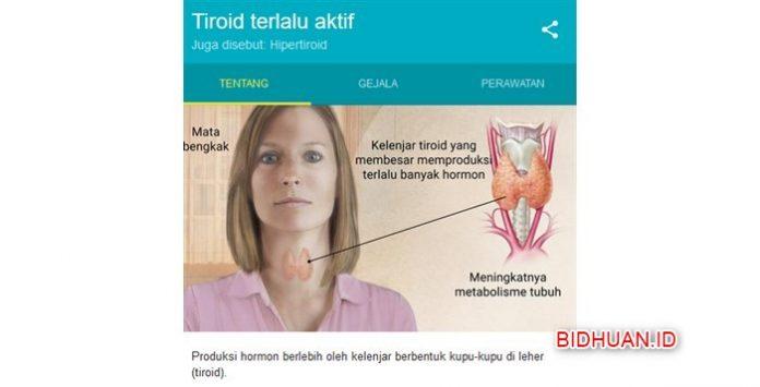 Hipertiroid - Penyebab Gejala dan Cara Mengobati