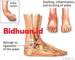 Mefinal untuk pengobatan sakit sprain