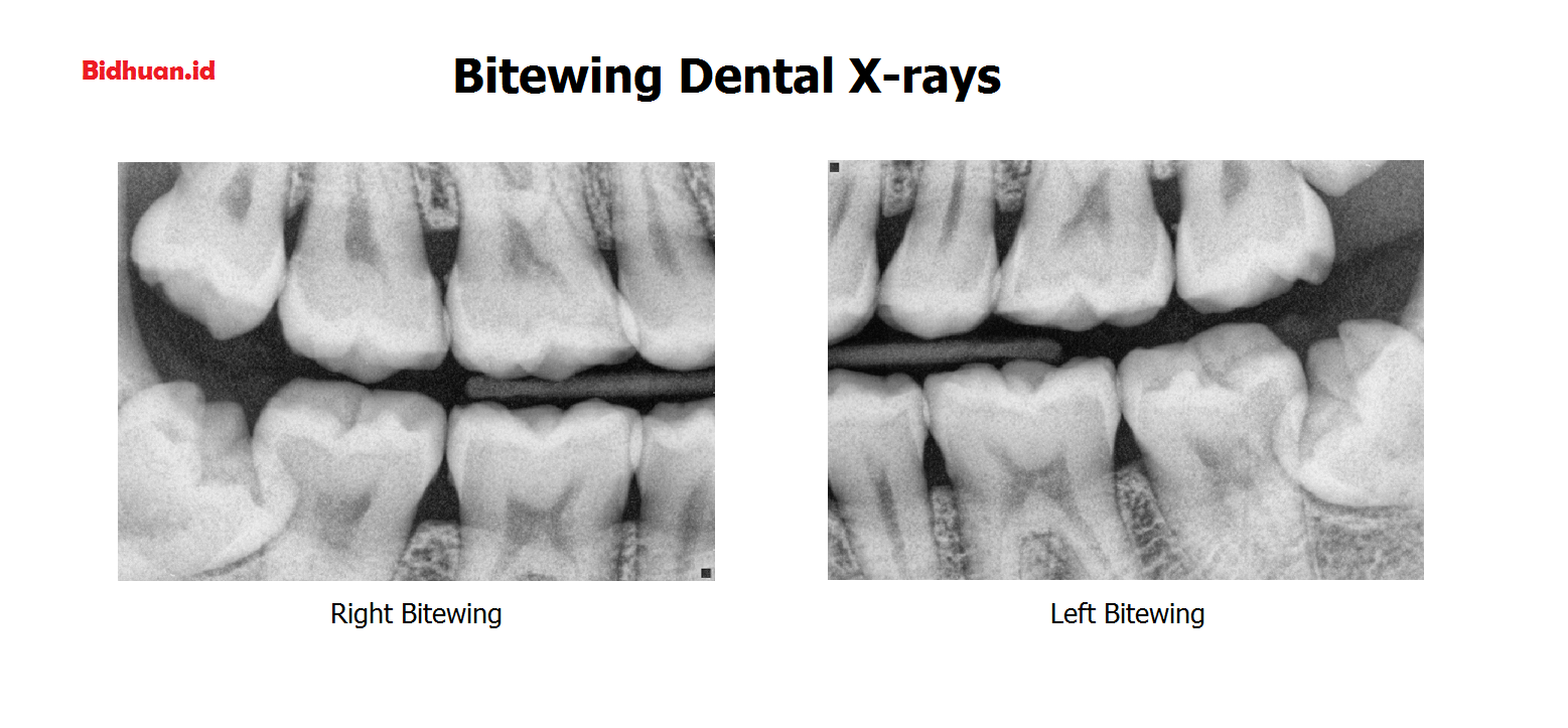 Bitewing X-Ray