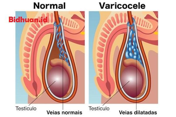 Gejala penyakit vorikokel