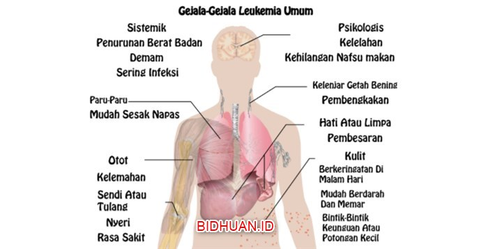12 Macam Gejala Leukimia Secara Umum